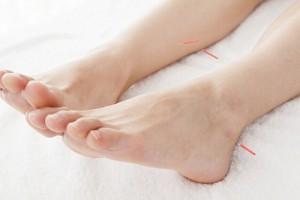 足への鍼灸写真
